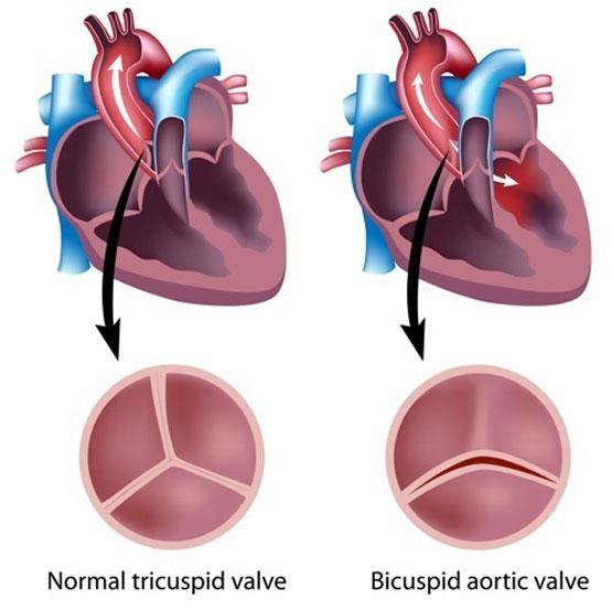 Aortic Stenosis In Children: Bicuspid Aortic Valve In Babies And Children. Paediatric