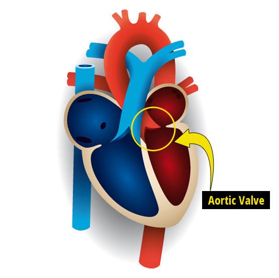 Aortic Stenosis In Children: Aortic Stenosis In Children
