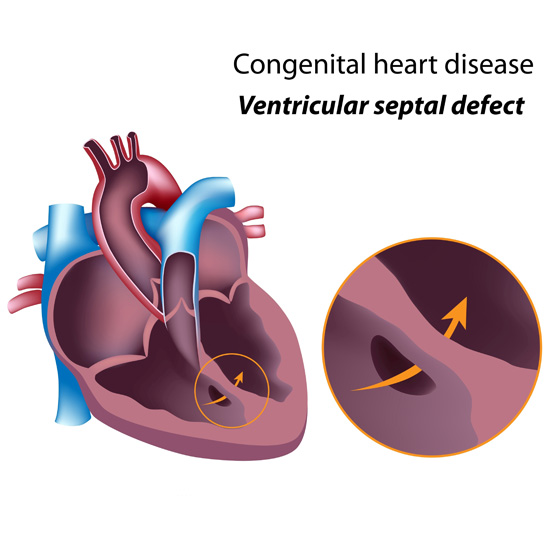 ventricular septal defect diagnosis and treatment A ventricular septal defect (vsd) is an opening that exists between the two lower  chambers of the heart  what are the symptoms of ventricular septal defects.